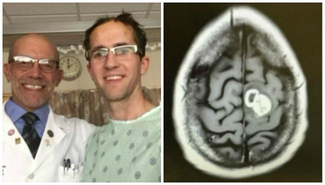 Craig Alguire brain scan 051116_213486