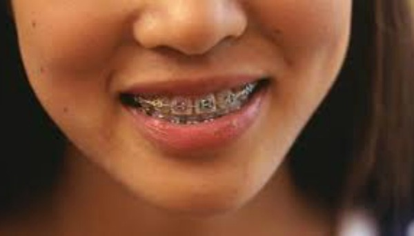 Braces on young girl_45089