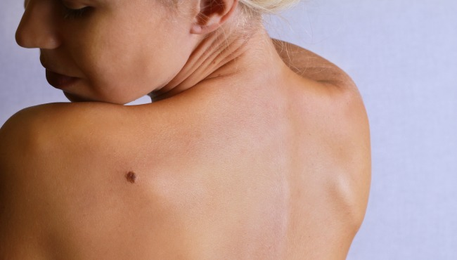 Young woman looking at birthmark on her back, skin. Checking benign moles_46708