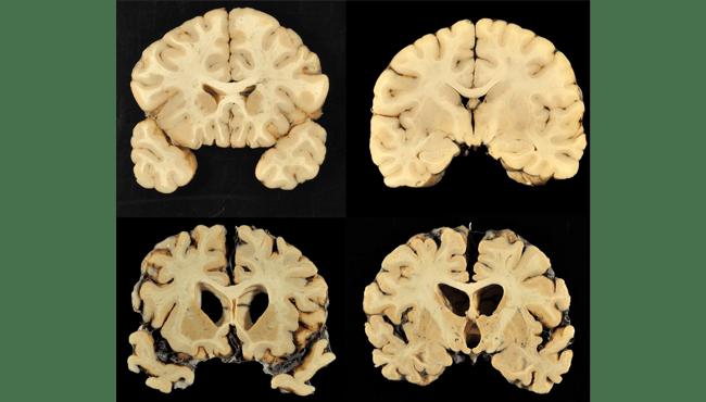 brain disease CTE AP_375353