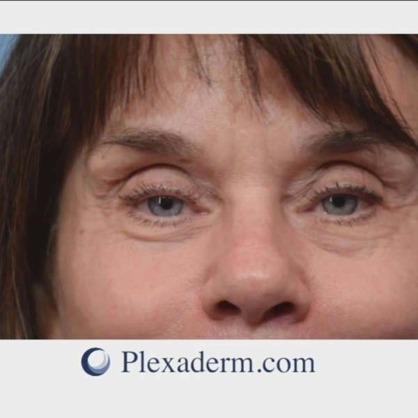 Reduce_the_signs_of_aging_with_Plexaderm_0_20180522171621