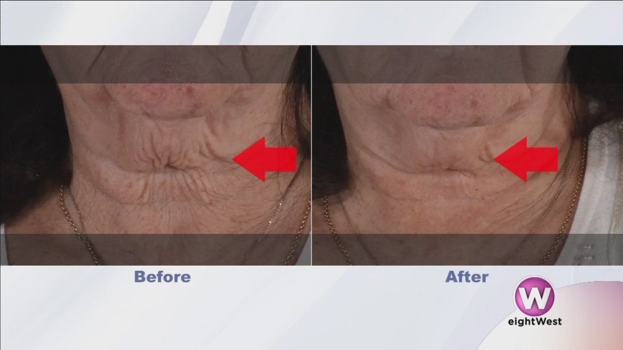Care_for_your_skin_and_get_rid_of_wrinkl_0_20181018164252