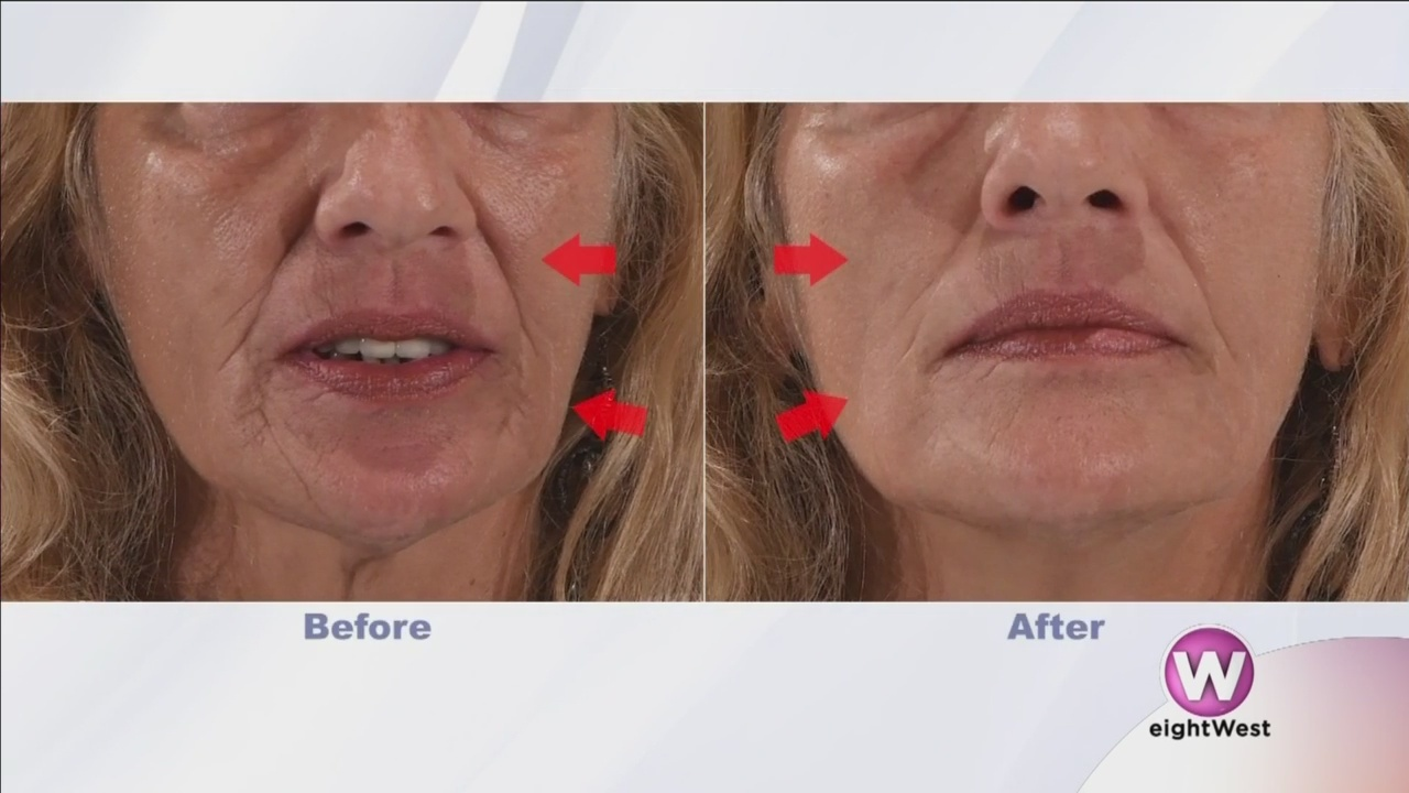 Caring_for_your_skin___get_rid_of_wrinkl_0_20181030170356
