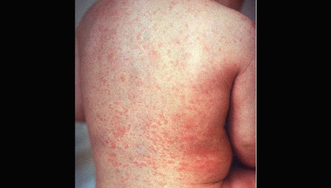 Rubella rash CDC 020119 edited_1549062556454.png.jpg
