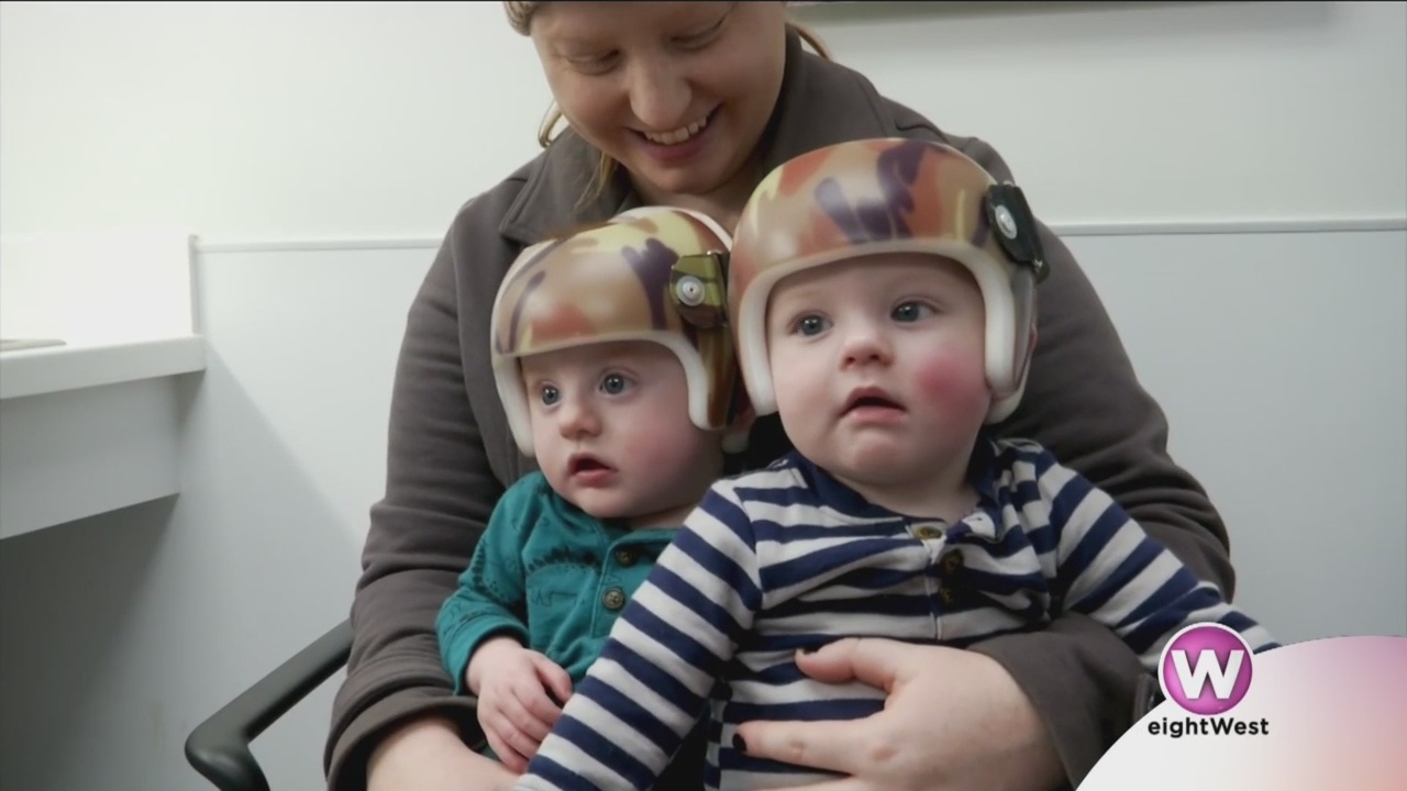 Helmet_therapy_for_growing_babies_9_20190425175148