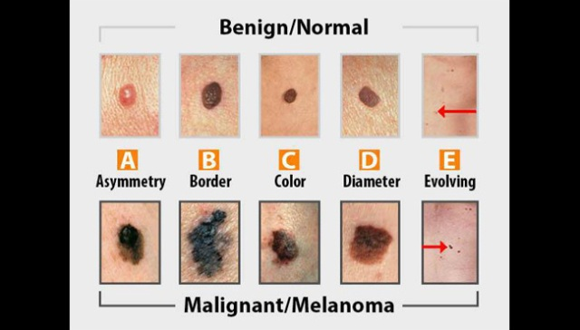 What to look for during a skin cancer self-exam