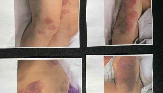 A photo of the bruises the victim received after Carlos Cruz Hernandez allegedly beat and raped her for days. (Sept. 5, 2019)