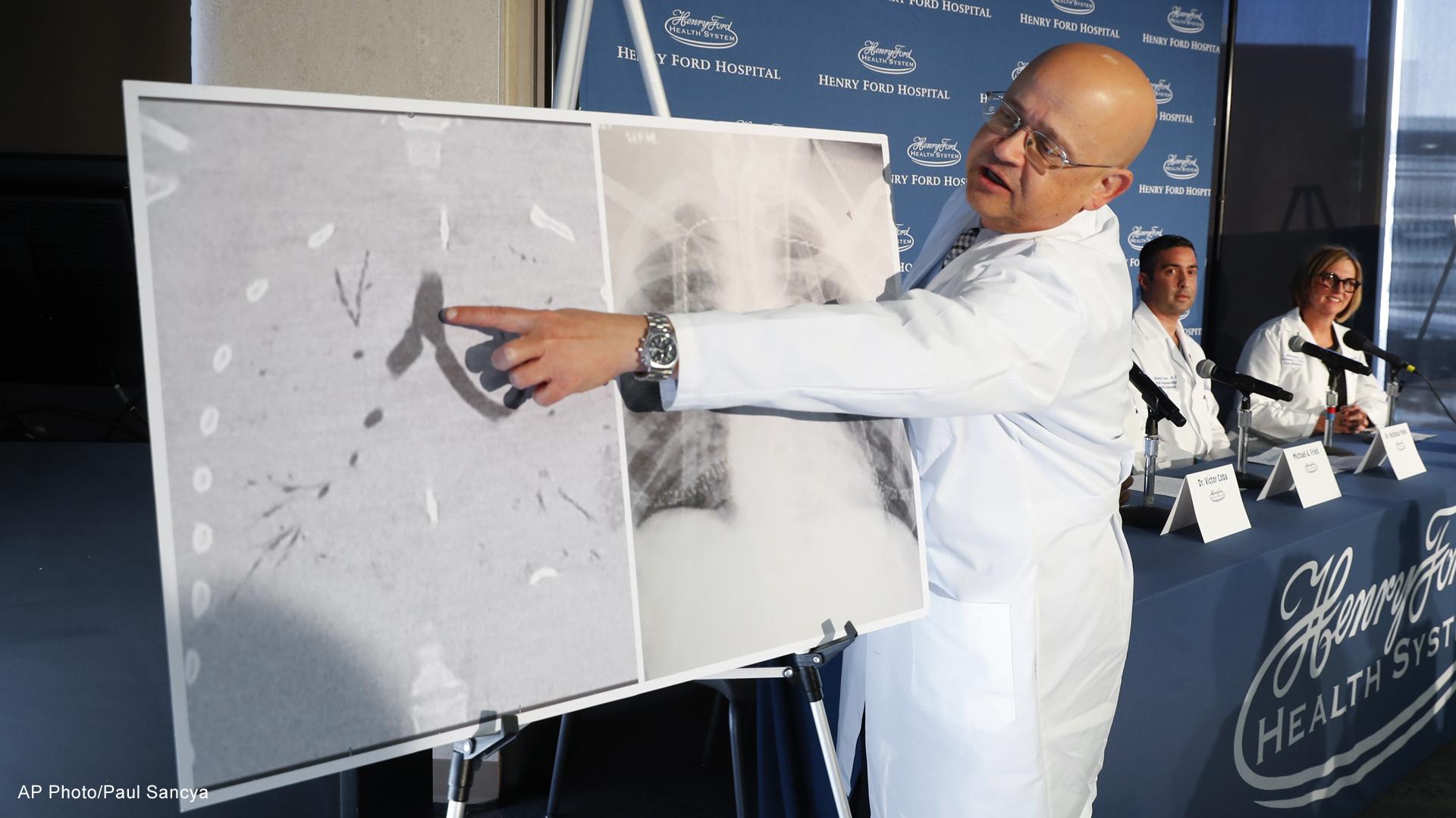 Vaping Lung Transplant