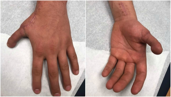 Photos of Aiden Adkins' new thumb after the transplant. (Dec. 5, 2019)